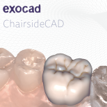 exocad ChairsideCAD